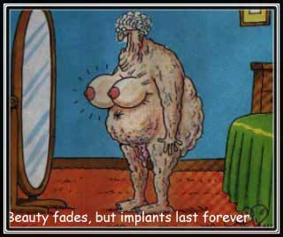 Beauty Fades But Implants Dont